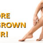 Ingrown Hair or Razor Bumps